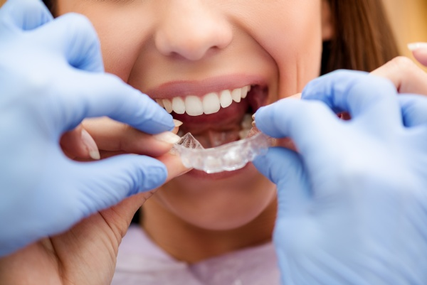 Which Teeth Straightening Option Is Right For You?